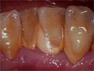 歯のクリーニング(保険・自費)